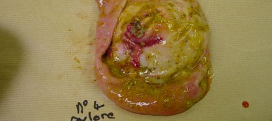 Úlcera en la zona pilórica