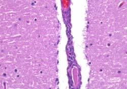 Meningoencefalitis en vaso sanguíneo