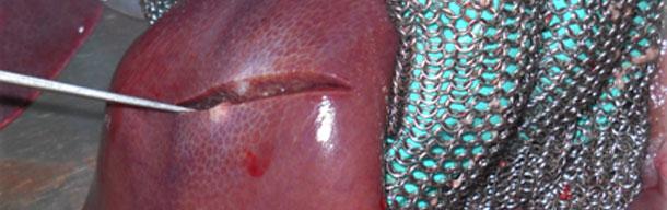 Lesiones_cicatrizales_higado
