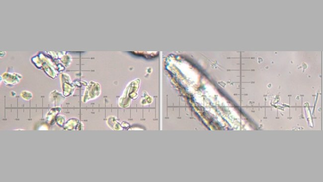 Ac. acetilsalicílico micronizado y no micronizado