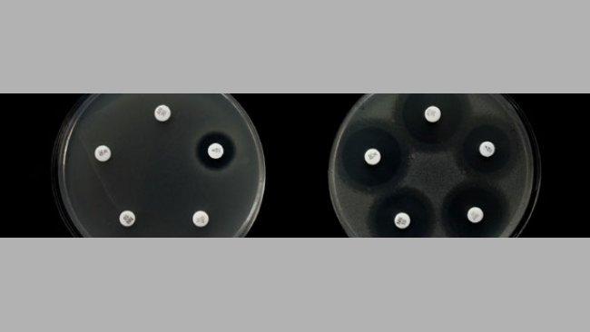 Ejemplo de resistencia a diferentes antibióticos en dos cepas de Salmonella.