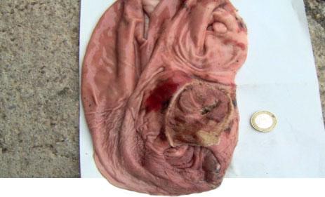 hemorragia por ulcera gastrica