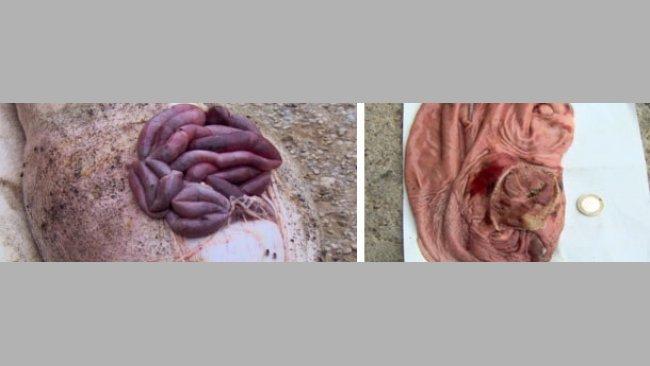 Úlceras gástricas agudas