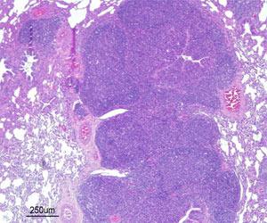Neumonía bronco-intersticial con hiperplasia del tejido linfoide bronco-alveolar (BALT) causada por una infección experimental por Mhyo.