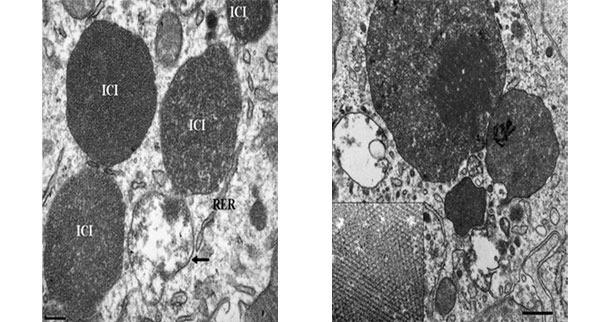 Microscopía electrónica de un linfonodo de un cerdo con PCV2-ES