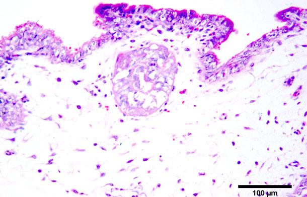 Necrosis coagulativa en trofoblastos. Tinción hematoxilina-eosina.
