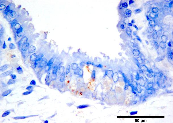 Tinción marrón por inmunohistoquímica del antígeno de PCV2b en trofoblastos marrones. Cromógeno diaminobenzidina y contraste de hematoxilina.