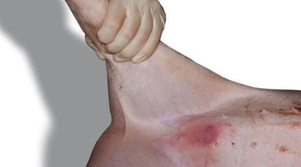 Reacción típica de eritema observada 24 h tras aplicación en la piel del abdomen