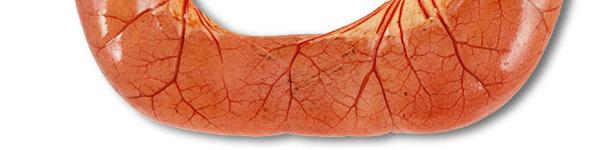 La necropsia de casos de diarrea por ETEC suele mostrar asas del intestino delgado dilatadas, finas y congestionadas, llenas de diarrea acuosa de color amarillo.
