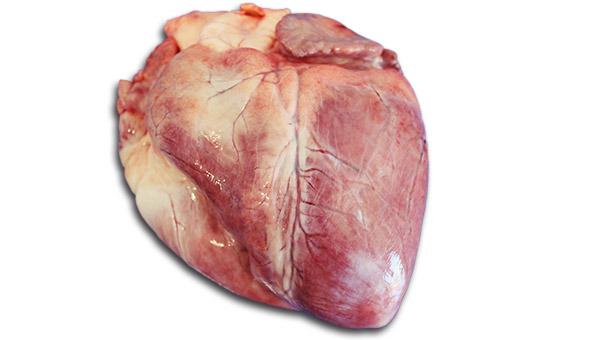 Alteraciones brillantes localizadas del miocardio