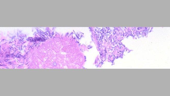 Intestino delgado de un lechón con diarrea asociado a infección por Clostridium perfringens tipo A