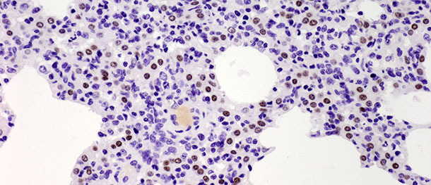 Los puntos marrones indican el núcelo de los neumocitos tipo II identificados con anticuerpos anti-TTF-1. Se observó un aumento significativo en el número de células positivas a los 10 días tras la infección con un aislado tipo I subtipo 1