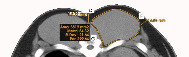 Medidas lineales, curvilíneas y de área obtenidas en imágenes de tomografía computarizada de la zona del lomo (espesor de grasa subcutánea superior- D y lateral F, y área y perímetro del lomo-G).