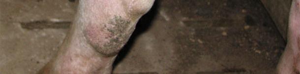 Miembro posterior de una nulípara
