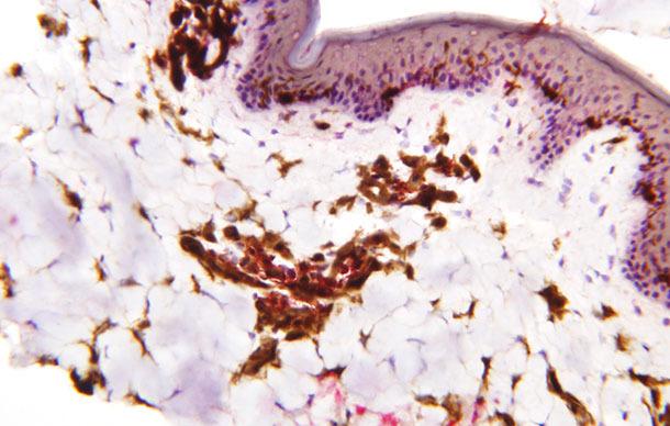 Distribución de las células dendríticas en la epidermis, dermis y tejido subcutáneos en el cerdo.