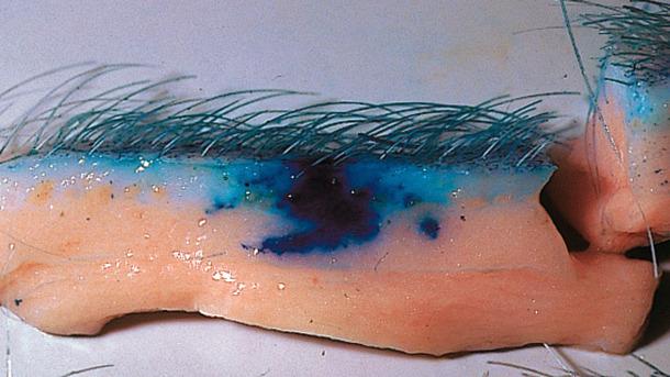 La tecnología sin aguja mejora la dispersión de las vacunas en el tejido
