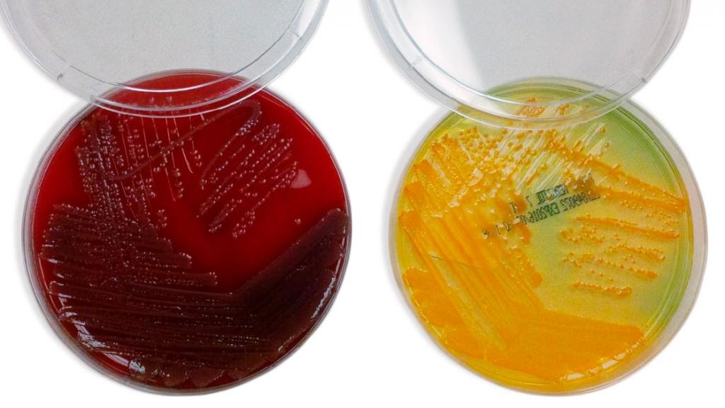 Cultivos diferenciales para el diagnóstico de E. Coli