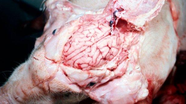 Figura 5. Cerebro visiblemente húmedo.
