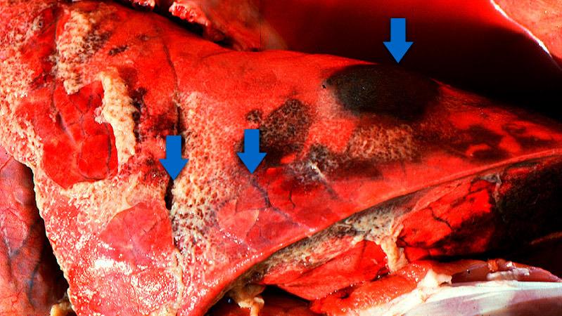 Los tres hallazgos típicos de la pleuropneumonia porcina aguda: 1) áreas consolidadas de color rojo oscuro a negro; 2) edema interlobular y 3) pleuritis fibrinosa. Cortesía del Dr Robert Desrosiers