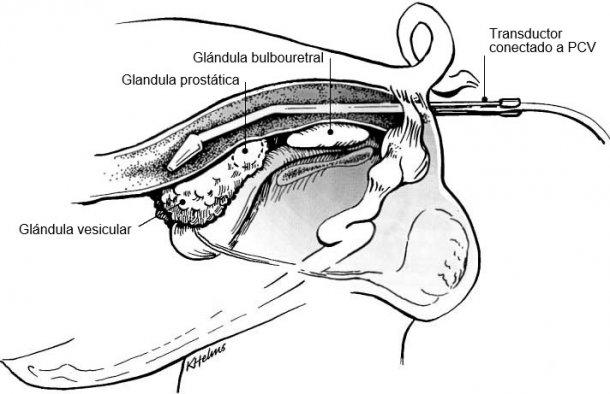 Figura 1: Colocación del soporte del transductor con el transductor por recto para la visualización de glándulas sexuales accesorias del verraco (Clark & Althouse, 2002).