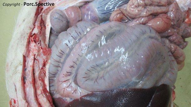 Foto 2. Edema del mesenterio del colon espiral
