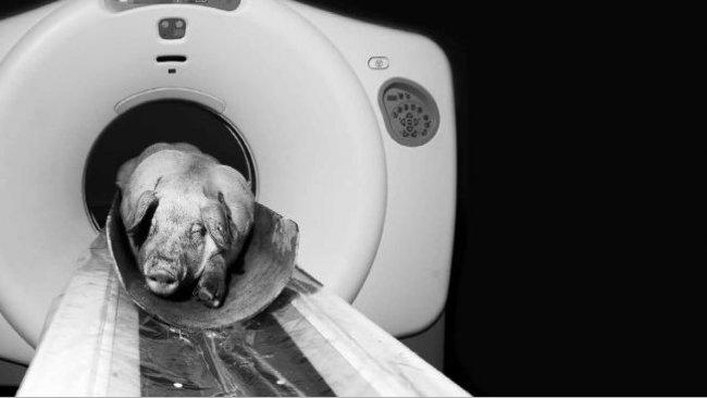Tomografía computerizada