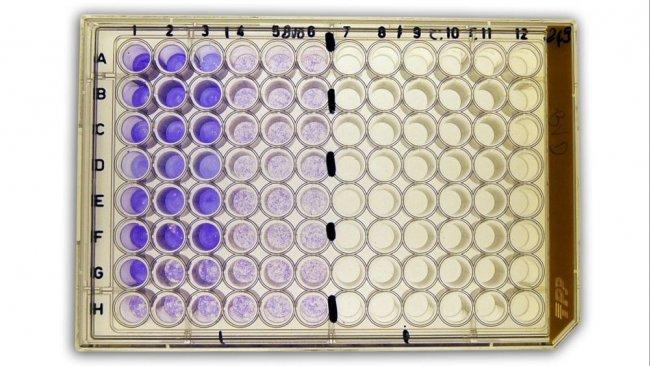 Figura 2b: Seroneutralización(SN) para la detección de anticuerpos frente a virus de la diarrea viral bovina (BVDv) en suero.