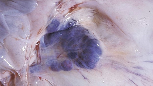 Fotografía 6. Hallazgos de necropsia en cerdos afectados. Nótense las hemorragias en los ganglios linfáticos mesentéricos.