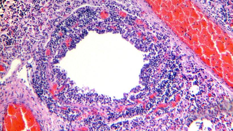 Figura 4. Bronquiolo que muestra descamación y necrosis del epitelio respiratorio, junto con una marcada infiltración linfocítica de la lámina propia y submucosa.