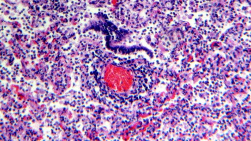Figura 5. Infiltrado linfocitario perivascular.