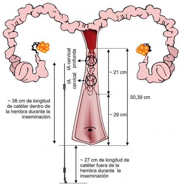 Figura 3. Representación de la disposición del catéter de IA en el tracto genital de la hembra durante la IA. Las dimensiones han sido medidas a partir de inseminaciones y de tractos genitales de cerdas nulíparas procedentes de matadero.