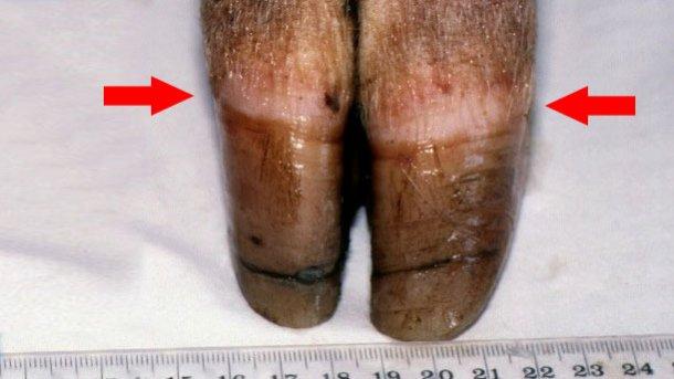 Figura 1. Banda coronaria [flecha]. Nótese el crecimiento desigual y el agrietamento de la pezuña.