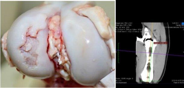 Vista macroscópica de la articulación de la rodilla con una lesión severa de osteocondrosis en el cóndilo lateral del fémur.