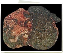 Úlcera gástrica en la pars esofágica
