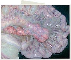 Marcado incremento de tamaño del linfonodo, enrojecimiento y el edema del mesenterio.
