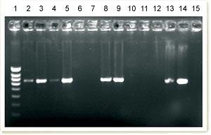 PCR para la detección de DNA de PCV2