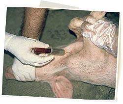 muestra sangre