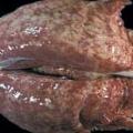 pulmón cerdo afectado por complejo respiratorio porcino