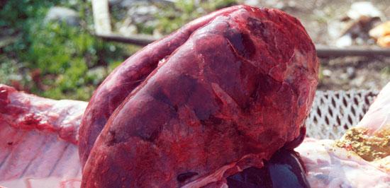 Lesiones pulmonares de tipo A1
