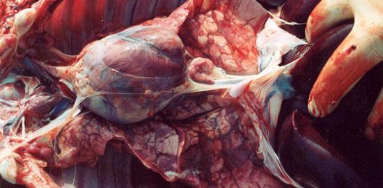 Lesiones pulmonares de tipo B2