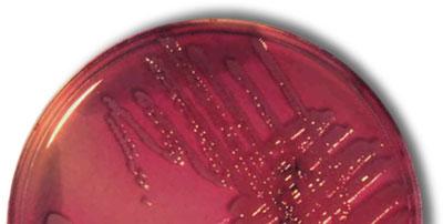 Cultivo de E. coli