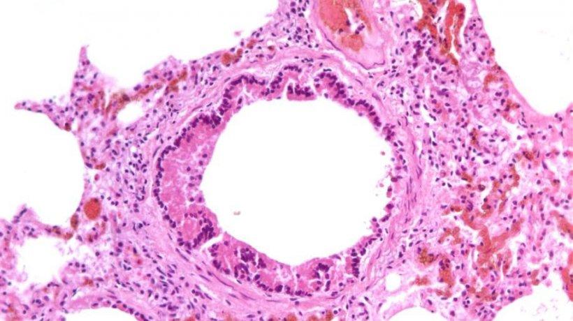 Figura 5: Bronquiolitis necrotizante causada por la infección por SIV.