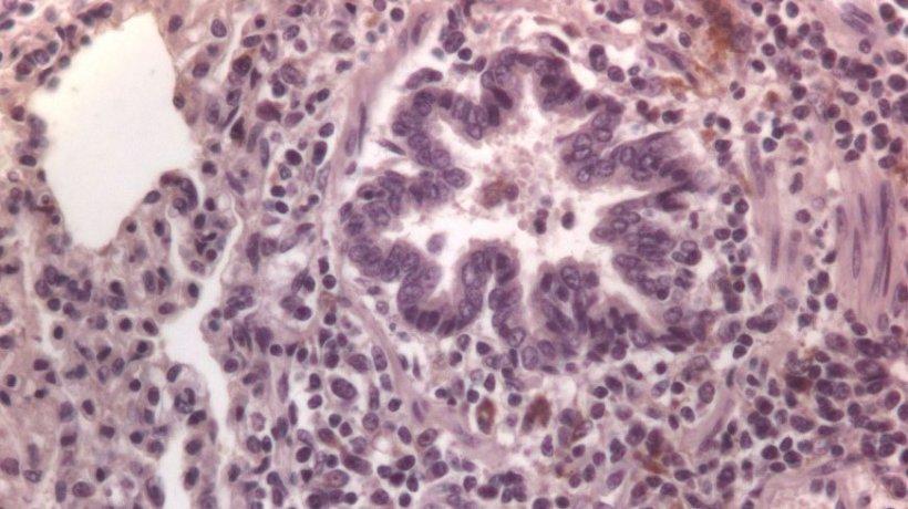 Figura 3: Células inmunomarcadas frente a PCV2 en pulmón.