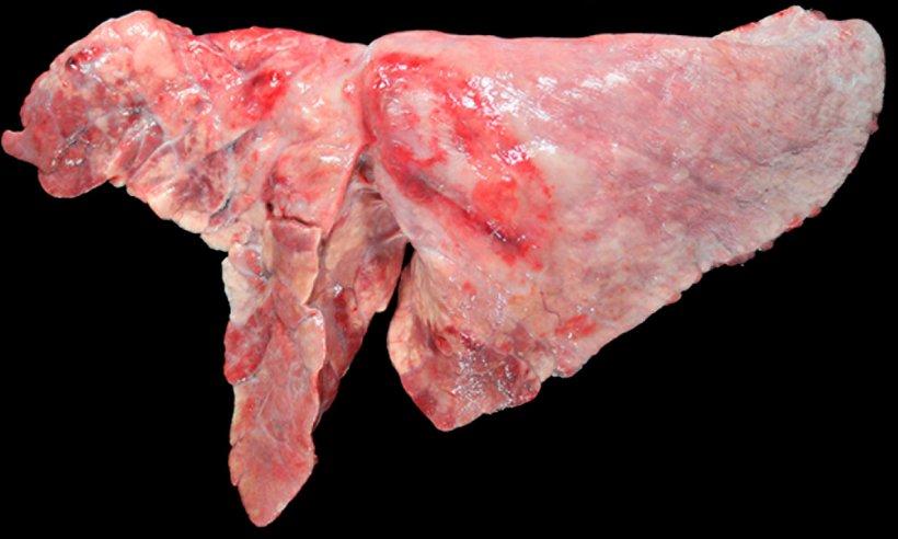 Figura 5: Pulmón de un cerdo coinfectado con M. hyopneumoniae y A. pleuropneumoniae. Áreas de consolidación craneoventrales de color marrón-rojizo, provocada por la infección por M. hyopneumoniae, y una lesión ovalada con fibrosis pleural y zonas hemorrágicas en lóbulo diafragmático, que se correspondería a la cronicidad de un foco de necrosis producido por A. pleuropneumoniae.