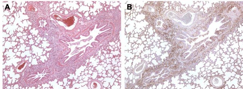 Figura 3. Pulmón de un cerdo coinfectado por M. hyopneumoniae y PCV2. A: Área de hiperplasia linfoide peribronquiolar causada por M. hyopneumoniae. B: Gran cantidad de antígeno de PCV2 en esa misma área de hiperplasia linfoide.