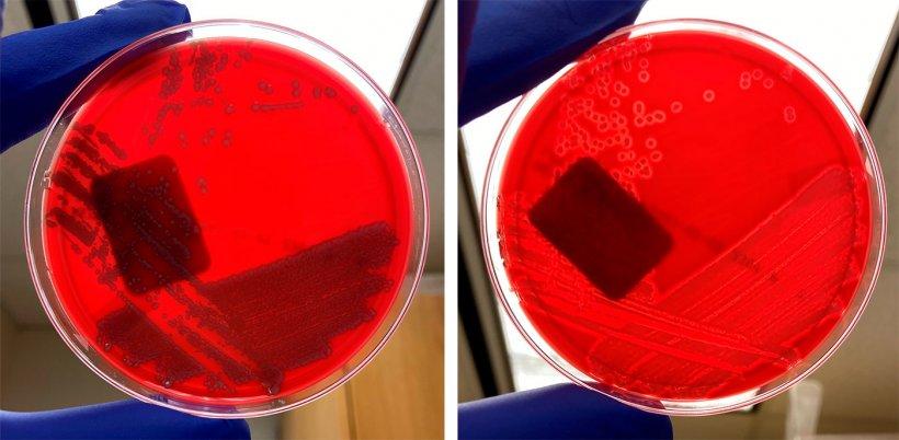E. coli no hemolítica (izquierda) y E. coli hemolítica (derecha)