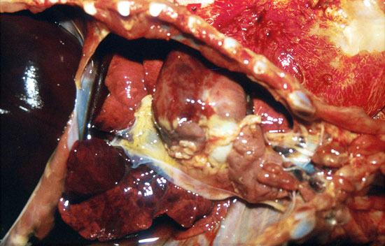 Gastroenteritis por E. coli