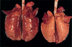 Pulmones con circovirosis porcina